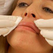 Filler Behandlung Vorbereitung | hautok und hautok cosmetics