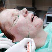Phenol Peel Vorbrereitung | hautok und hautok cosmetics