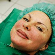 Ergebnis Thermage® | hautok und hautok cosmetics