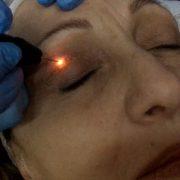 Blefaroplasma Behandlung | hautok und hautok cosmetics