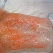 Kleresca® Behandlung Wirkungsstoff auftragen | hautOK München