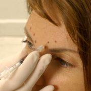 Behandlung Vistabel | hautok und hautok cosmetics